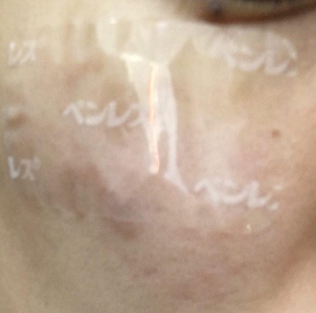 麻酔テープを貼った肌