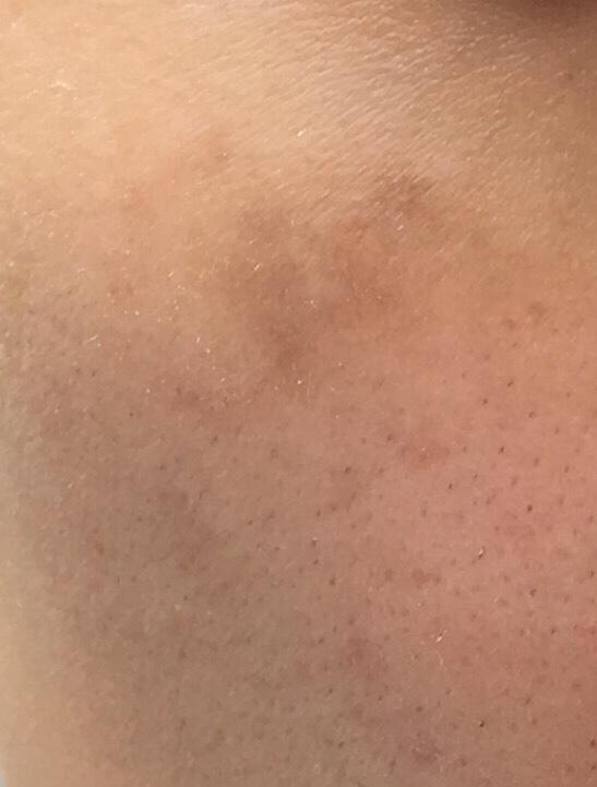 レーザ照射2か月後の肌の状態