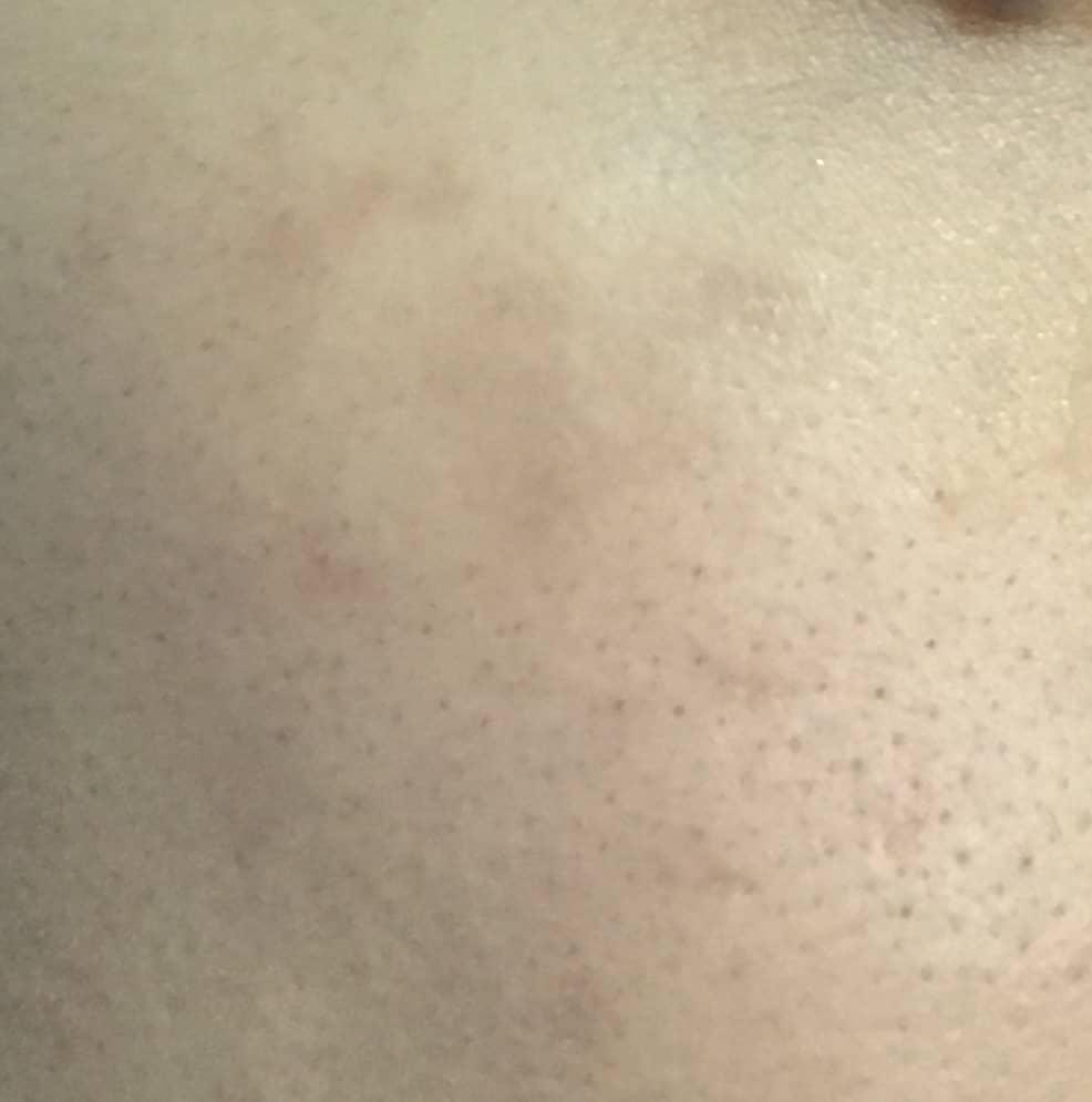 レーザー照射から9カ月後の肌