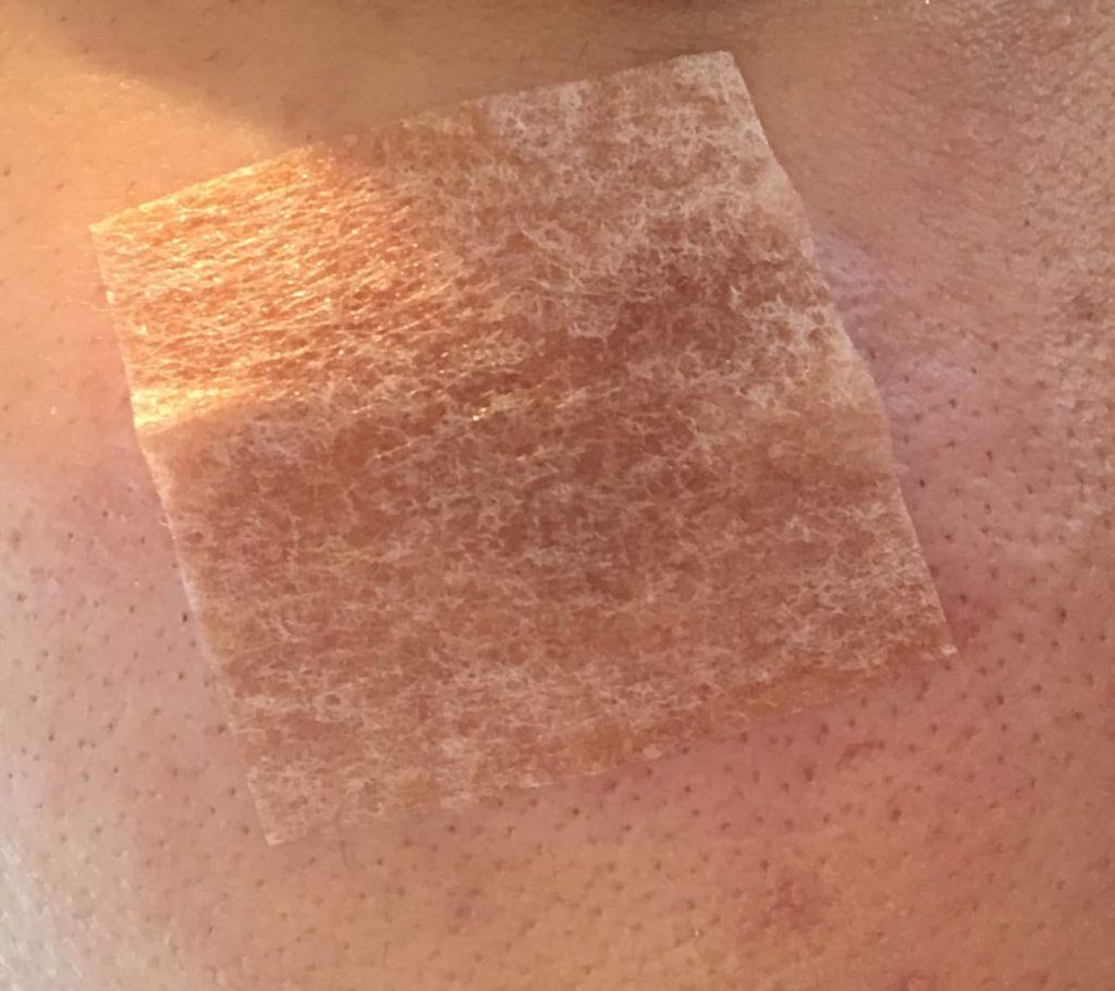 二度目のレーザー照射後の肌