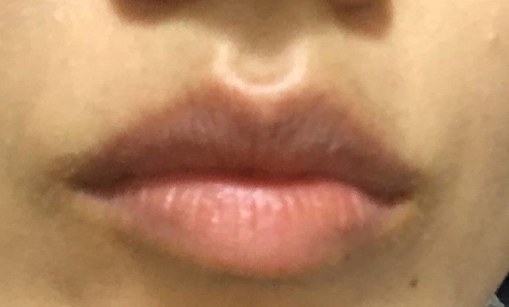 LIP38℃ リップトリートメントを塗る前の唇